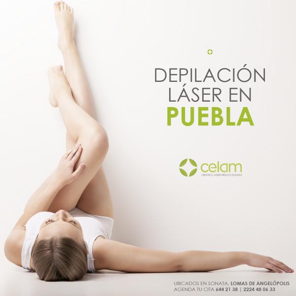 Tp Fotos Detalladas De Depilacion Laser Salud Y Bienestar En Puebla Todopuebla Com